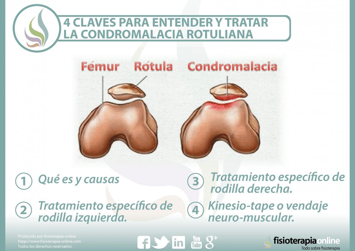 4 claves para entender y tratar la condromalacia rotuliana