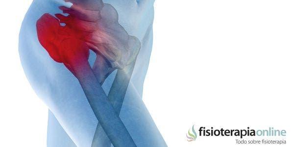 Artrosis de cadera o coxartrosis. Síntomas, Diagnóstico y tratamiento de fisioterapia.