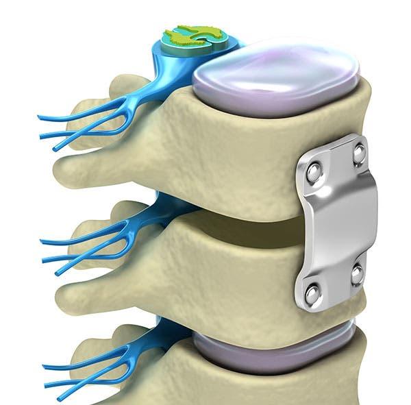 Artrodesis lumbar: Qué es, indicaciones, riesgos y tratamiento de fisioterapia.