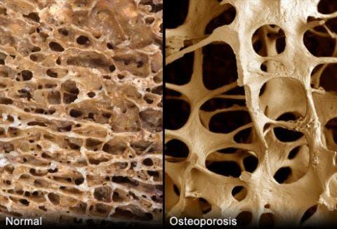 Qué es la Osteoporosis y como pueden ayudarte el Yoga y el pilates para tener huesos fuertes.