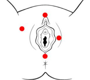 Dolor y escozor en la vulva