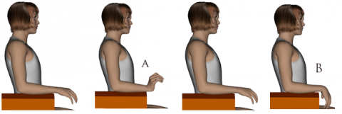 Ejercicios de fractura de cabeza radial pdf