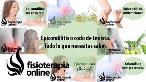 Tendinitis de codo, Epicondilitis lateral o codo de tenista
