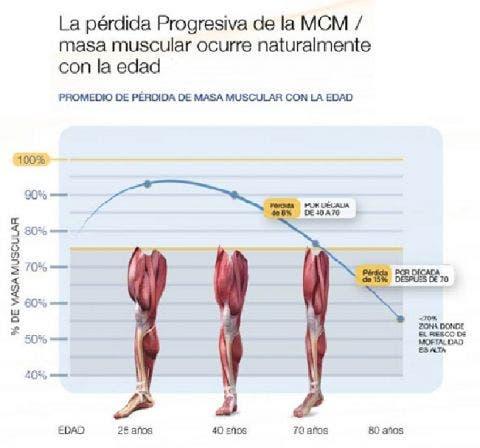 Artrosis ¿Un problema articular o muscular? ¿Qué es la