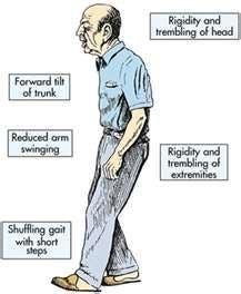 causas y sintomas de la enfermedad de parkinson