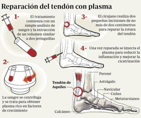 dolor en el tendon del pie