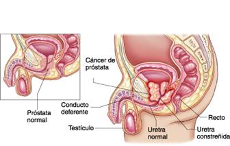 hinchazón de la próstata e incontinencia fecal