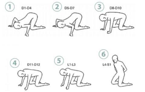 Posturas y ejercicios de Klap para el tratamiento de escoliosis