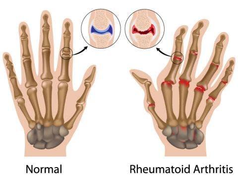 Fisioterapia en reumatología o reumatológica
