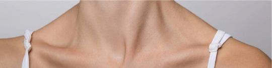 Fractura de clavícula