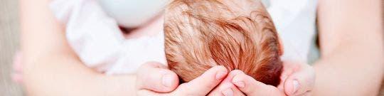 Plagiocefalia o deformidad craneal del bebé