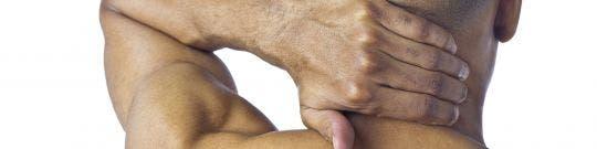 Cervicalgia o Dolor cervical