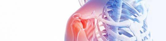 Otras lesiones de hombro