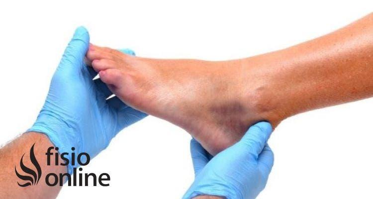 Fisioterapia y prevención en el pie diabético