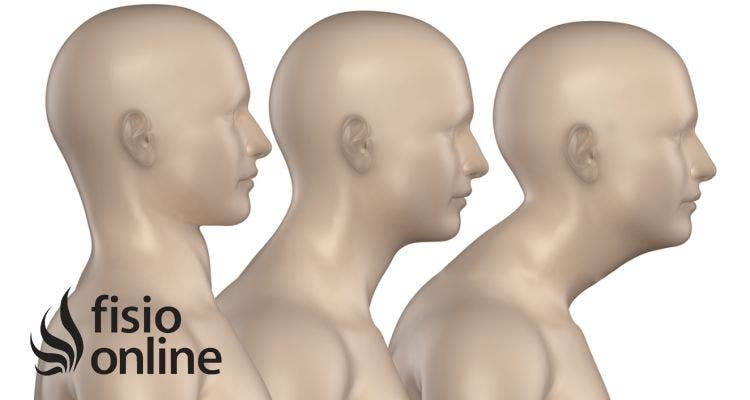 Los mejores 5 consejos para evitar dolor en tu espalda (hipercifosis, hernias discales, rectificaciones, etc.)