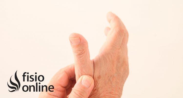 Artrosis del pulgar o rizartrosis. Qué es, causas y tratamiento en fisioterapia
