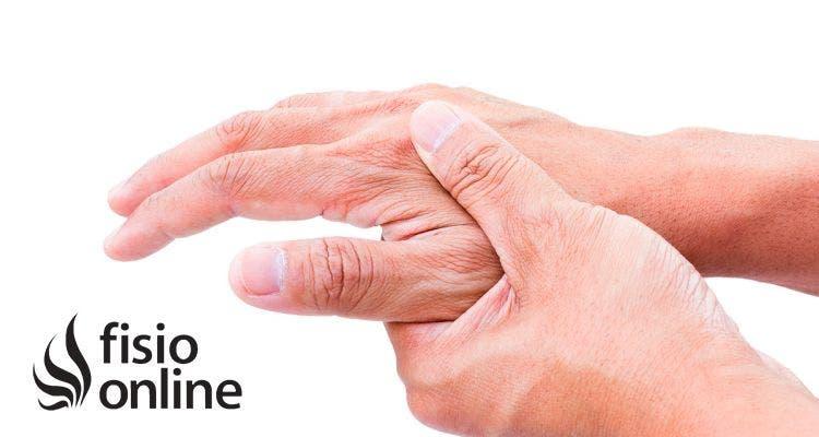 caso clinico de artritis reumatoide en ancianos