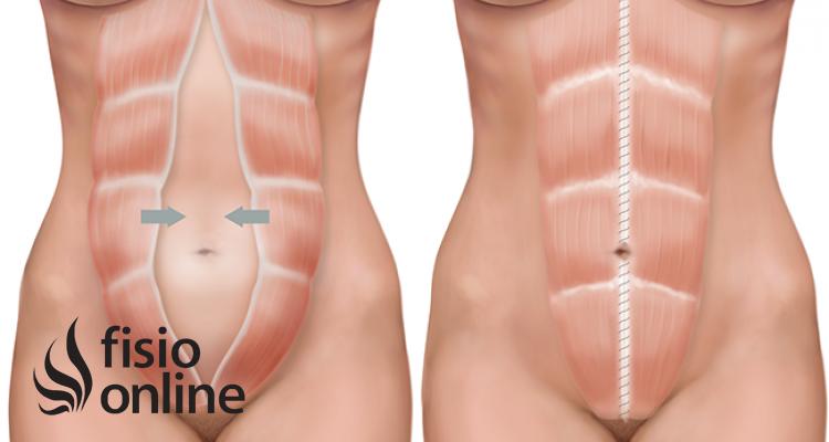 Abdominal desgarro embarazo muscular