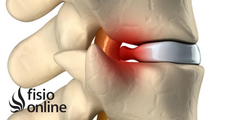 causas de una hernia discal cervical