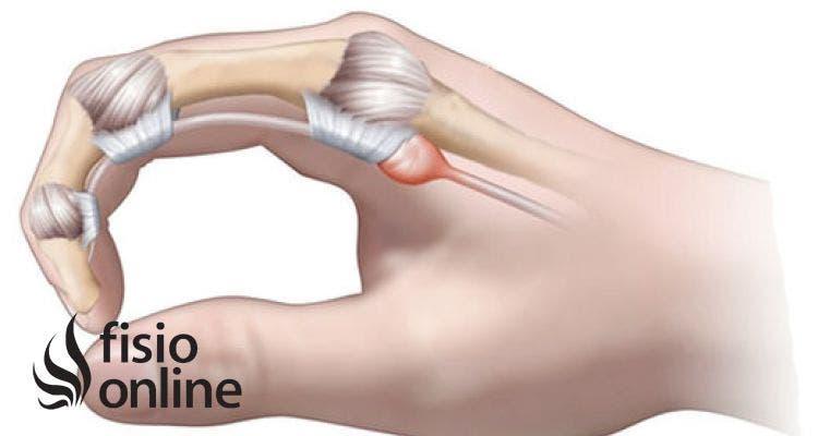 Tengo dolor en el dedo medio de la mano derecha