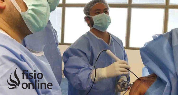 ¿En qué consiste la cirugía del Impingement Subacromial?
