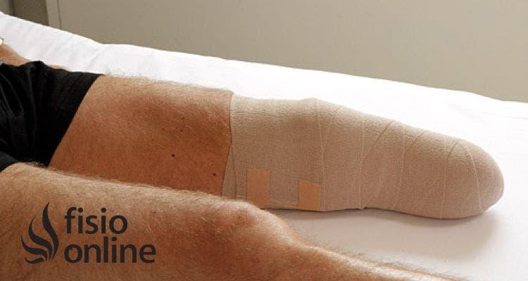 ¿Cómo se debe cuidar el muñon después de una amputación tibial?