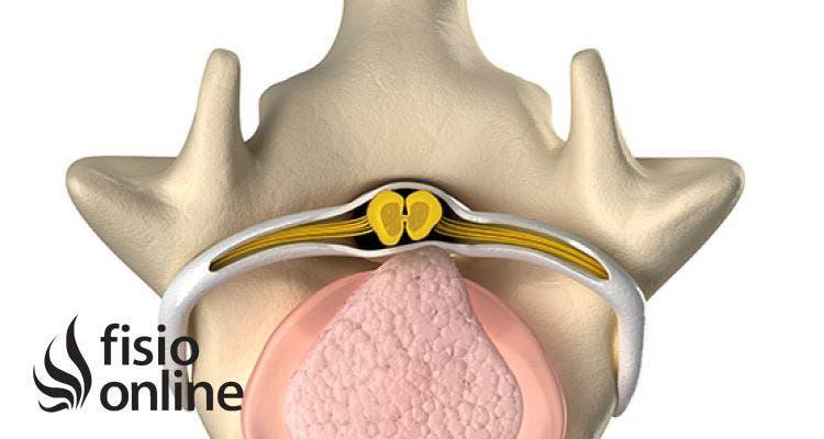 ¿Qué es un Hernia Discal? Causas y síntomas
