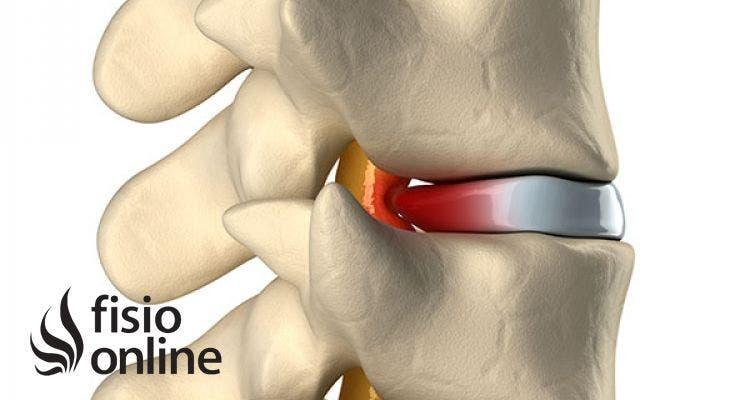 Hernia Discal Central A Nivel L5 S Causas Síntomas Y Tratamiento En Fisioterapia Fisioonline