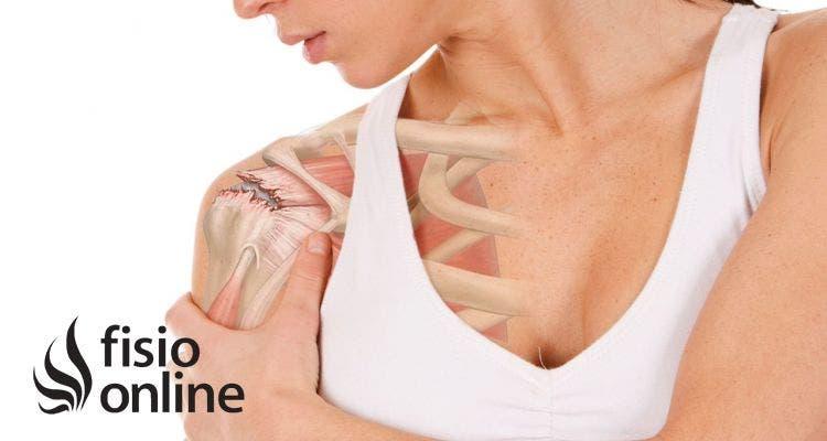 nuevo producto acc72 d5232 Lesión de hombro: Tendinitis del supraespinoso. ¿Qué es ...