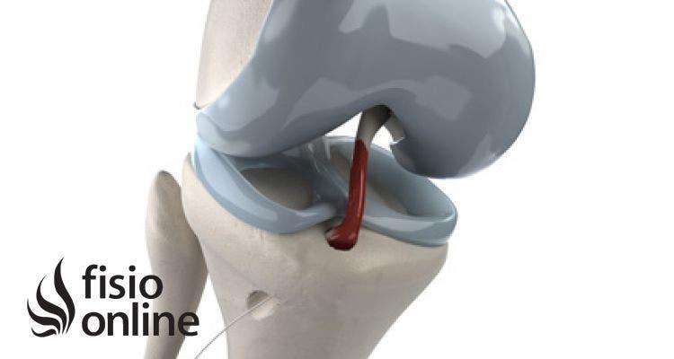 Lesión del ligamento cruzado anterior. Causas, ejercicios y tratamiento de fisioterapia.