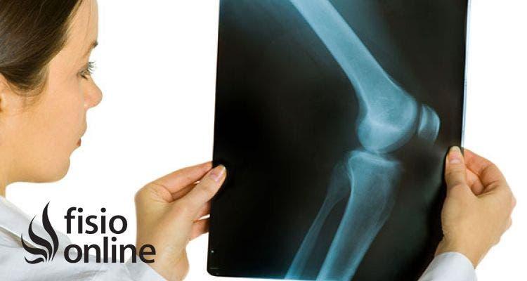 Artrosis o desgaste de rodilla. 5 consejos de un fisioterapeuta