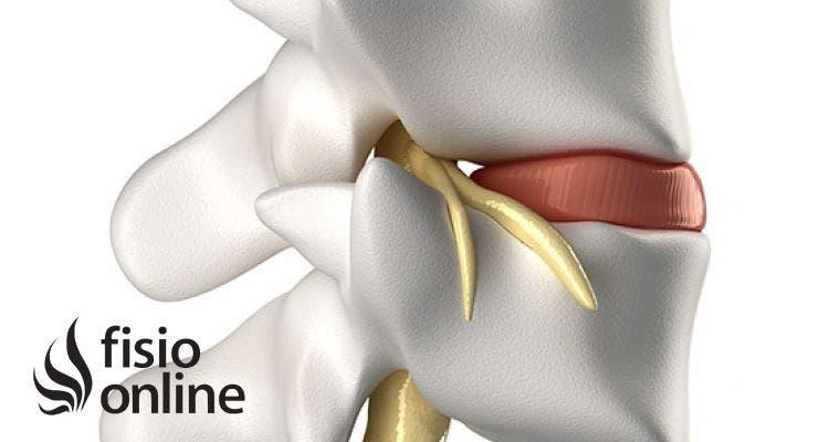 Artrosis Facetaria Lumbar Pdf