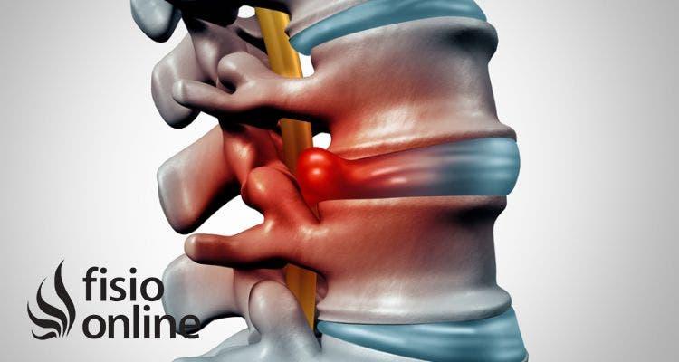 Hernias inyeccion discales para