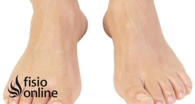 Dolor dedo gordo pie al caminar