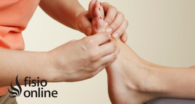 Dedos en garra: ¿Qué hacer con los dedos en garra?