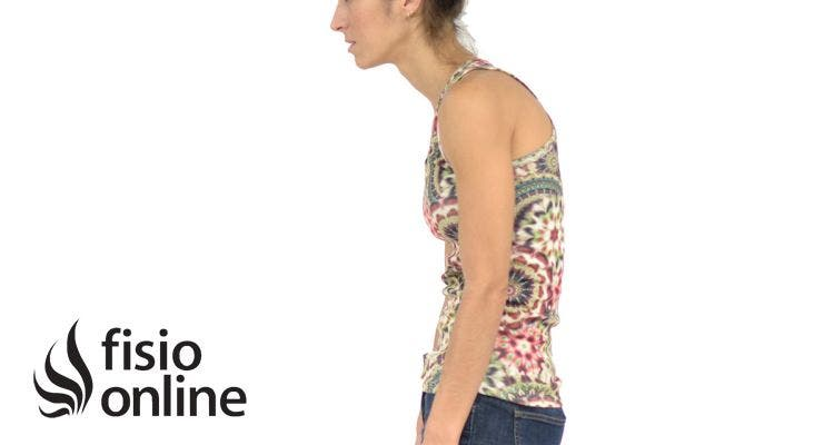 Hipercifosis Dorsal. ¿Qué es? Causas, síntomas, diagnóstico y tratamiento o corrección por medio del Yoga.