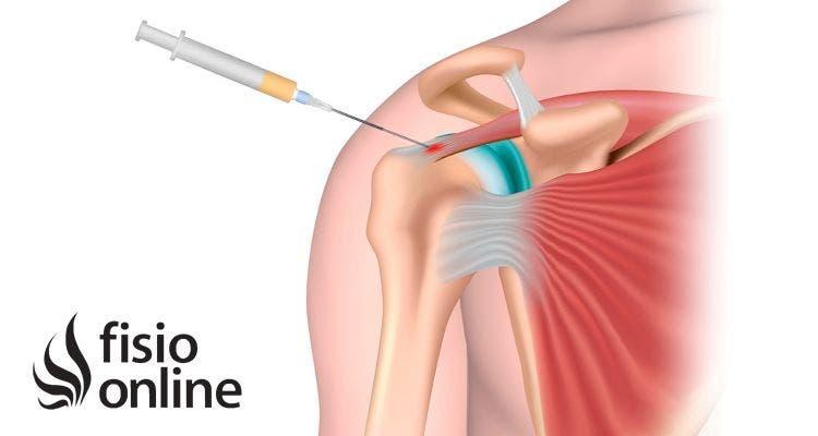 Beneficios del plasma rico en plaquetas en lesiones articulares, indicaciones, contraindicaciones y efectos terapéuticos