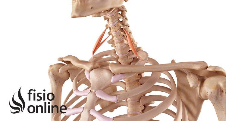 Síndrome del desfiladero de los Escalenos. Qué es, causas, síntomas ...