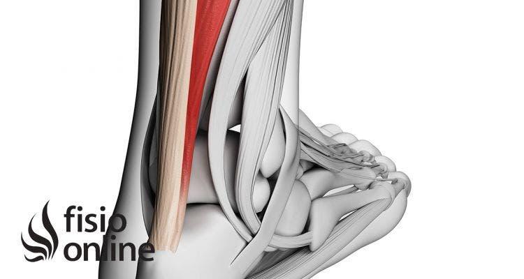 Síndrome de uso excesivo: ¿Por qué se lesiona un tendón?