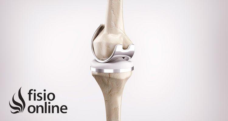 Lo que debes saber sobre las prótesis de rodilla