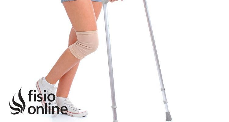 Fracturas de rótula. Clasificación, síntomas, diagnóstico y tratamiento en fisioterapia