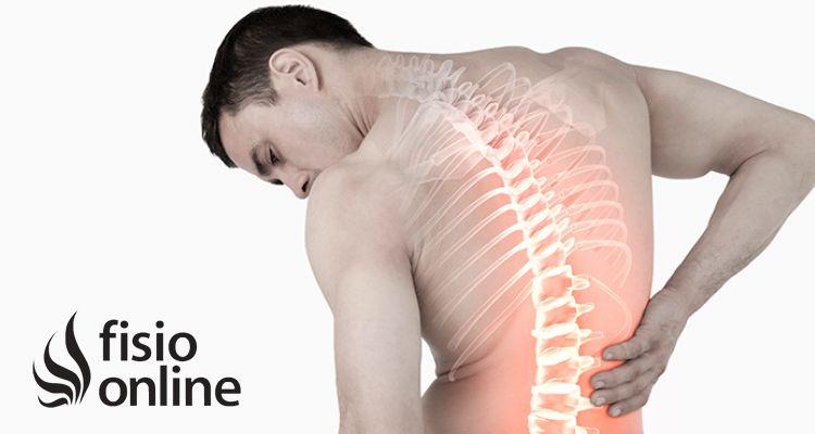 ¿En qué consiste el tratamiento de fisioterapia del acuñamiento vertebral?