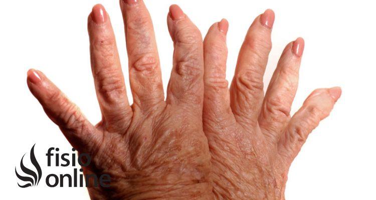 ¿Se puede curar la artrosis?