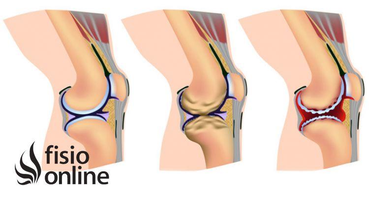 Artrosis O Desgaste Articular Qué Es Causas Síntomas Y