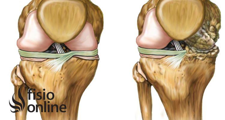 Artrosis en el deporte ¿Cómo cuidar nuestra rodilla? Prevención, tratamiento, alimentación y suplementos