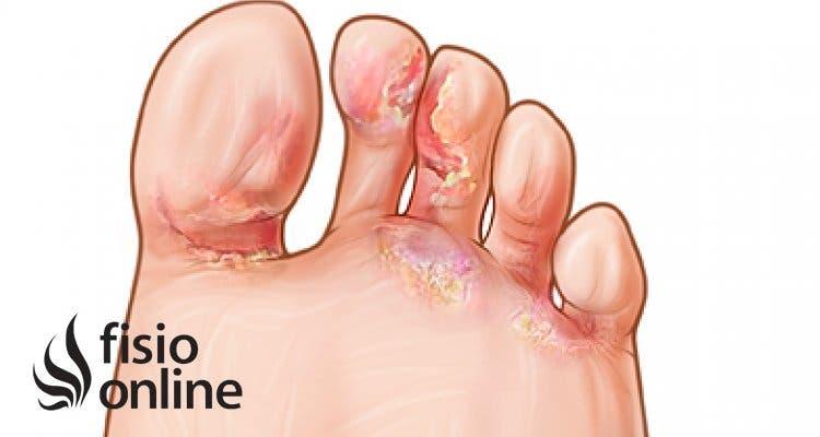 Ampollas en los pies. Prevención y tratamiento