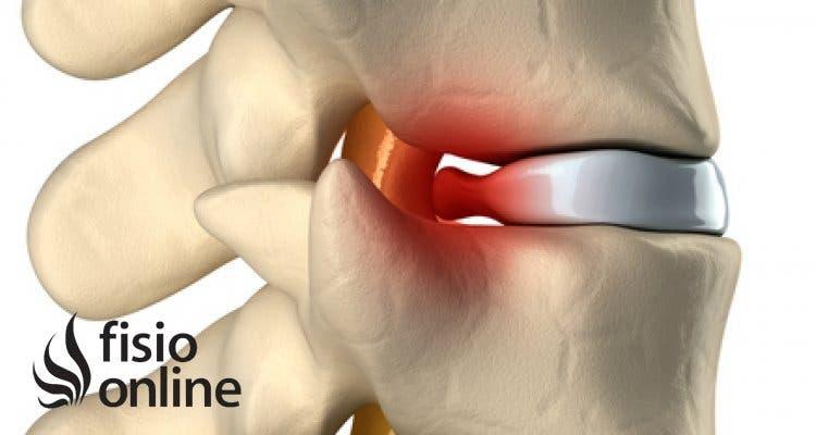 Tratamiento de hernia discal cervical
