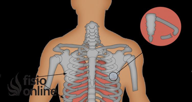 ¿Cómo se pueden disminuir las complicaciones ocasionadas por las fracturas de costillas?