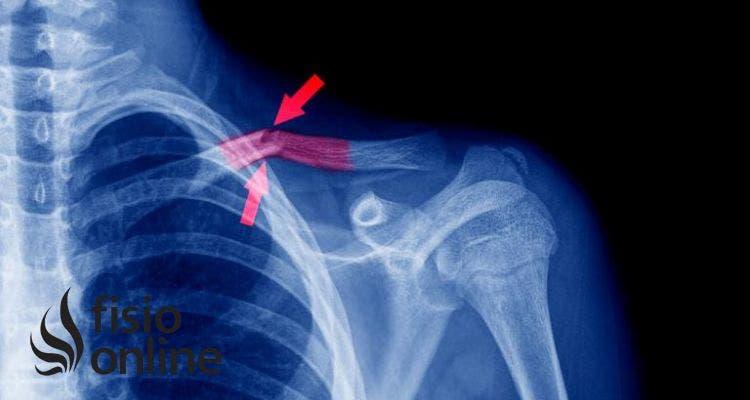 ¿Cómo cuidar la fractura de clavícula?