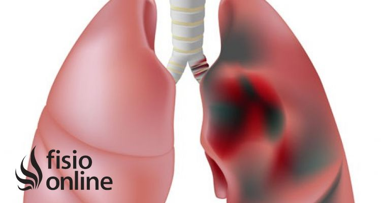 Enfermedad pulmonar obstructiva cronica o EPOC ¿Qué es?